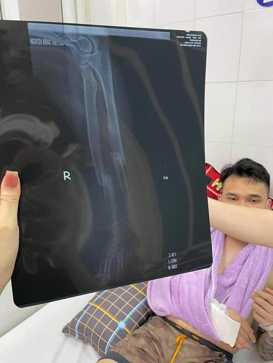 Khắc Việt chấn thương nặng ở cả hai tay, đang được cấp cứu tại bệnh viện - Ảnh 2