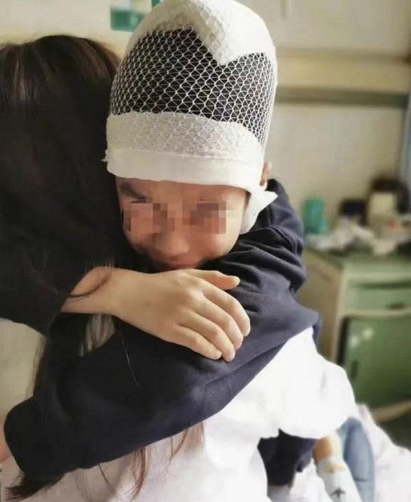 Nói chuyện trong lớp, nam sinh Trung Quốc bị thầy giáo giật tóc tới chấn thương sọ não - Ảnh 2