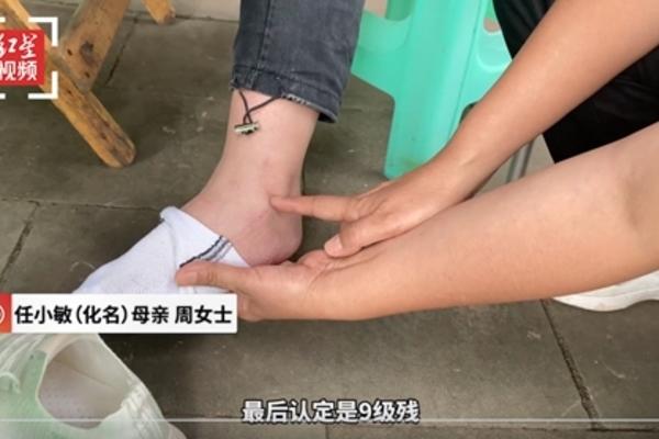 nu sinh 13 tuoi bi thuong tat vinh vien chi vi goi do an vat trong phong ky tuc xa
