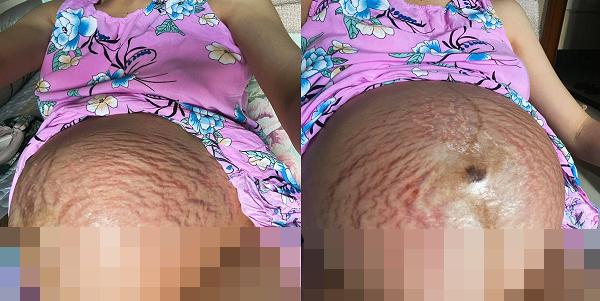 hoa minzy khien dan tinh xuc dong khi cong khai can canh bung bau chang chit vet ran khi mang thai 011