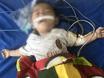 Tin trong nước - Lào Cai: Bé trai 12 tháng tuổi nguy kịch vì ngộ độc thuốc phiện do bà nội tin lời thầy lang