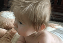 Sức khoẻ - Làm đẹp - Cậu bé có mái tóc dài kỳ lạ ngay từ khi còn trong bụng mẹ
