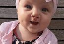 Sức khoẻ - Làm đẹp - Bé gái 7 tháng tuổi cười và phát âm ngay sau lần phẫu thuật hở hàm ếch đầu tiên