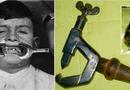 """Đời sống - Những thiết bị nha khoa thời """"ông bà anh"""" khiến bạn khóc thét khi nhìn thấy"""