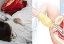 """Sức khoẻ - Làm đẹp - Nhận hậu quả nghiêm trọng vì """"bán trứng"""" chui"""
