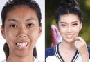 """Sức khoẻ - Làm đẹp - Cô gái có khuôn mặt xấu xí hóa """"thiên nga"""" sau 3 tháng"""