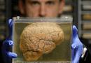 Sức khoẻ - Làm đẹp - Làm chậm quá trình lão hóa, tăng tuổi thọ 12 năm nhờ cấy ghép não