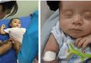 Sức khoẻ - Làm đẹp - 5 trường hợp tiêm vắc-xin có thể gây nguy hiểm cho con mà cha mẹ cần thuộc lòng