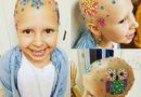 Đời sống - Bé gái 7 tuổi trọc đầu chỉ vì căn bệnh mà nhiều người vẫn coi thường