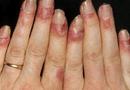 Tin tức - Coi chừng mắc bệnh hiểm nếu chân tay thường xuyên tê bì, ê buốt dù đã giữ ấm cơ thể