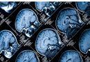 Tin tức - Dừng ca phẫu thuật não vì phát hiện mổ nhầm bệnh nhân