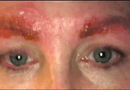 Y tế - Làm đẹp lông mày: Chẳng ngờ bị nhiễm trùng, suýt tử vong
