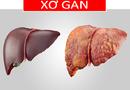 Tư vấn - 4 nguyên tắc phòng ngừa xơ gan dẫn đến ung thư gan