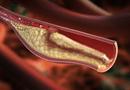 Sức khoẻ - Làm đẹp - Chi phí điều trị mỡ máu cao gấp 40 – 50 lần so với bệnh truyền nhiễm