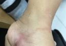 Tin tức - Về quê nghỉ hè, bé gái 5 tuổi bị giun xâm nhập cơ thể, bò lúc nhúc dưới da