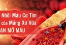 Sức khoẻ - Làm đẹp - Biện pháp hạ mỡ máu cao từ thảo dược hiệu quả nhất hiện nay