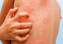 Sức khoẻ - Làm đẹp - Dị ứng và tổng hợp các cách chữa trị dị ứng an toàn, hiệu quả