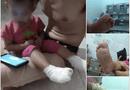 Tin tức - Bảo mẫu mở nhầm vòi nước nóng, bé gái 18 tháng tuổi bị bỏng 2 bàn chân