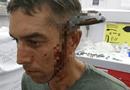 Tin tức - Bị dao dài 15cm đâm xuyên đầu vẫn đạp xe 800 m đến bệnh viện cầu cứu