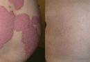 Sức khoẻ - Làm đẹp - Kiểm soát hiệu quả bệnh vẩy nến bằng thảo dược ở giai đoạn ổn định