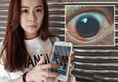 Tin thế giới - Dùng điện thoại màn hình quá sáng, cô gái trẻ bị thủng 500 lỗ ở giác mạc