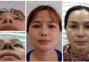 Y tế sức khỏe - Viện Thẩm mỹ bác sĩ Lê Văn Sẽ: Địa chỉ cứu cánh của những ca phẫu thuật hỏng