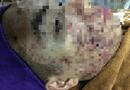 Sức khoẻ - Làm đẹp - Một phụ nữ Hà Nội bị hỏng gần hết da mặt sau lăn kim làm đẹp