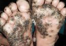 Sức khoẻ - Làm đẹp - Rùng mình với bàn chân bé gái 10 tuổi bị bọ chét tấn công