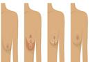 Tư vấn - Các cấp độ và phương pháp treo ngực sa trễ