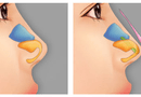 Sức khoẻ - Làm đẹp - Có nâng mũi bọc sụn - Không còn lo bóng đỏ đầu mũi