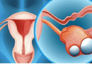 """Sức khoẻ - Làm đẹp - """"Đánh bại"""" triệu chứng u nang buồng trứng bằng sản phẩm thảo dược Nga Phụ Khang"""