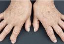 Sức khoẻ - Làm đẹp - 7 triệu chứng viêm khớp dạng thấp và cách phòng ngừa nhờ sử dụng Hoàng Thấp Linh