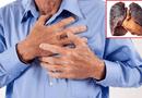 """Sức khoẻ - Làm đẹp - Dù đã bỏ hút thuốc nhiều năm, ung thư phổi vẫn là mối """"đe dọa"""""""