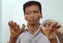 """Sức khoẻ - Làm đẹp - Bệnh """"người cây"""" lần đầu được phát hiện ở Việt Nam"""