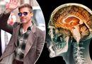 Sức khoẻ - Làm đẹp - Mang tiếng ngạo mạn bao năm, Brad Pitt thú nhận do mắc bệnh nguy hiểm