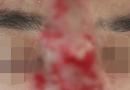 """Sức khoẻ - Làm đẹp - """"Giật mình"""" hình ảnh nam thanh niên hoại tử mũi, mù mắt sau khi tiêm filler làm đẹp"""