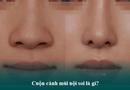 Sức khoẻ - Làm đẹp - Thu gọn cánh mũi nội soi - Tiểu phẫu nhưng có thật sự an toàn?