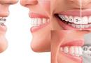 Sức khoẻ - Làm đẹp - Răng thưa phải làm sao: Niềng răng hay bọc sứ tốt hơn?