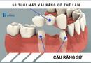 Sức khoẻ - Làm đẹp - 60 tuổi mất răng nên bắc cầu răng hay làm Implant?