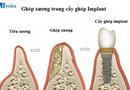 Sức khoẻ - Làm đẹp - Trồng implant có phải ghép xương không?