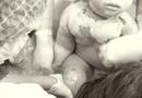 Đời sống - Ngã vào nồi nước lẩu đang sôi, bé 2 tuổi bỏng nặng