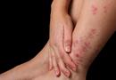 Sức khoẻ - Làm đẹp - Bật mí nguyên nhân và cách điều trị bệnh vảy nến ở chân