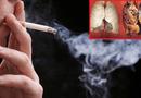 """Sức khoẻ - Làm đẹp - Tumolung - Giải pháp """"vàng"""" cho người bị ung thư phổi"""