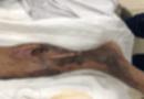 Đời sống - Tin tức đời sống mới nhất ngày 2/5/2020: Suýt mất mạng vì ăn gỏi cá rô phi nhiễm