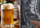 Sức khoẻ - Làm đẹp - Uống một lúc 10 cốc bia, ma men nhịn tiểu 18 tiếng đến rỗi rách bàng quang