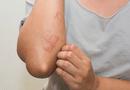 Tìm hiểu các phương pháp điều trị bệnh viêm da cơ địa