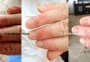 Sản phẩm - Dịch vụ - Bệnh á sừng và giải pháp điều trị hiệu quả, an toàn