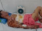Tin trong nước - Rò khí gas, cả gia đình 4 người bị bỏng nặng sau tiếng nổ kinh hoàng