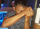 An ninh - Hình sự - Vụ nổ súng ở bến xe Quy Nhơn: Nạn nhân kể lại phút bị kẻ lạ mặt cầm súng bắn thẳng vào mình