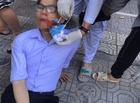 Tin trong nước - Vụ vợ nguyên Phó Chủ tịch phường hành hung cán bộ tư pháp: Nạn nhân tiết lộ bất ngờ